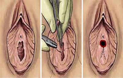 Reparation-de-la-virginite-Hymenoplastie