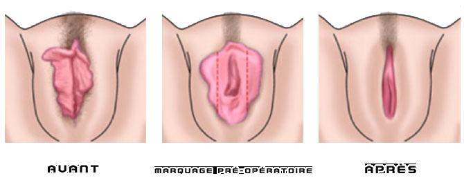 Durée moyenne du pénis