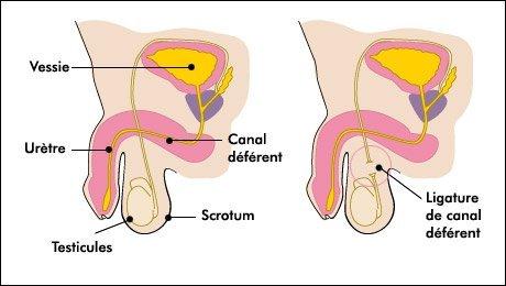 contraception-masculine-vasectomie-controle