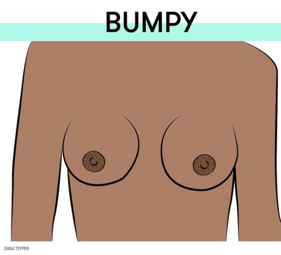 lvdx-8-formes-de-tetons-visuel-6-bumpy